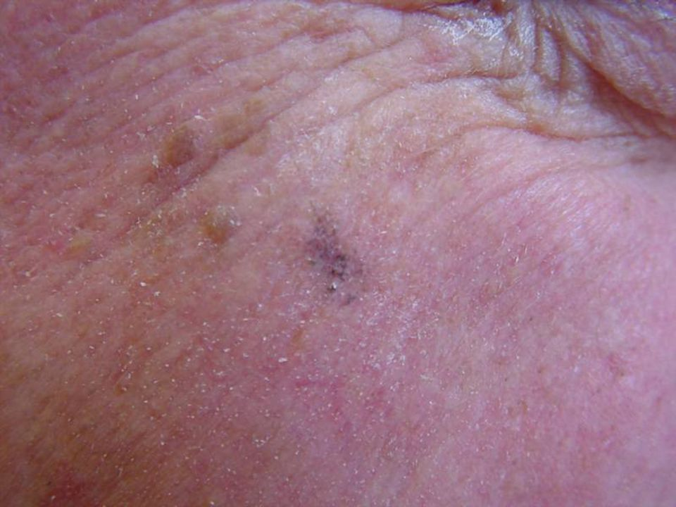 Lentigo, (plural: lentigenes), is generally considered a brown pigmented spot on the skin.