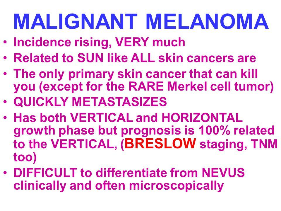 MALIGNANT MELANOMA Incidence rising, VERY much