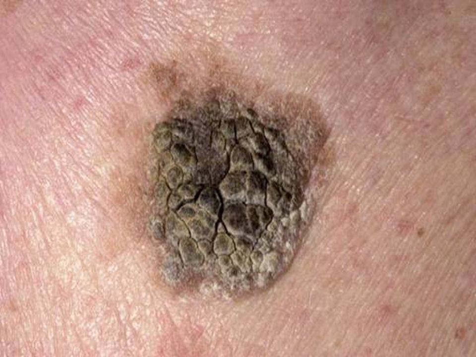 Seborrheic keratosis, a bit more pigmented than the previous one, pigmentation is very common in ALL types of benign keratoses.