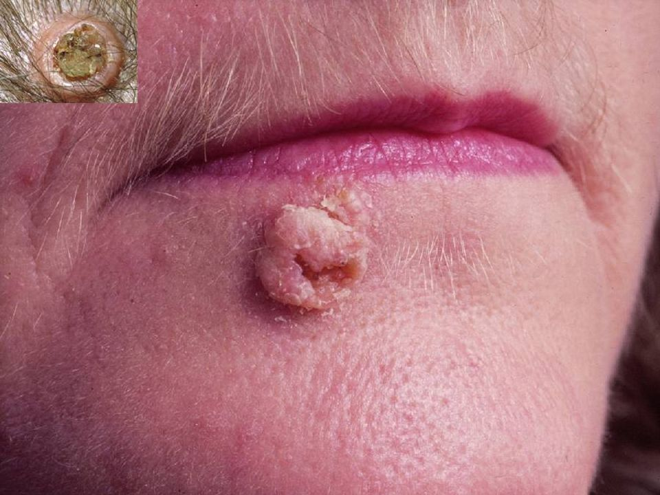 Keratoacanthoma, the MAIN lesion to differentiate from squamous cell carcinoma
