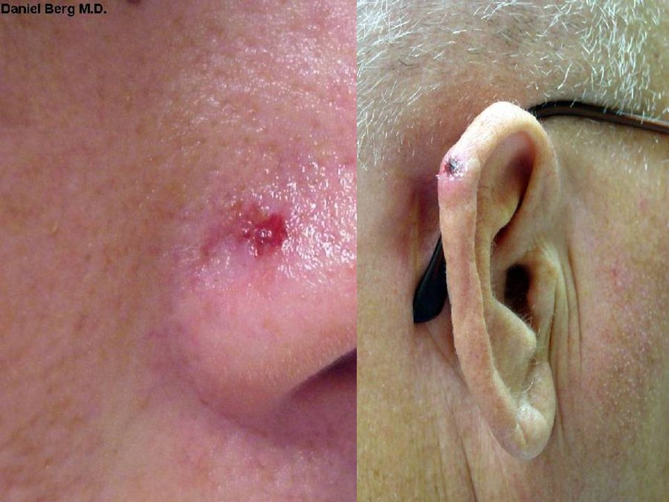 By far, the commonest malignancy of skin, BCC, i. e