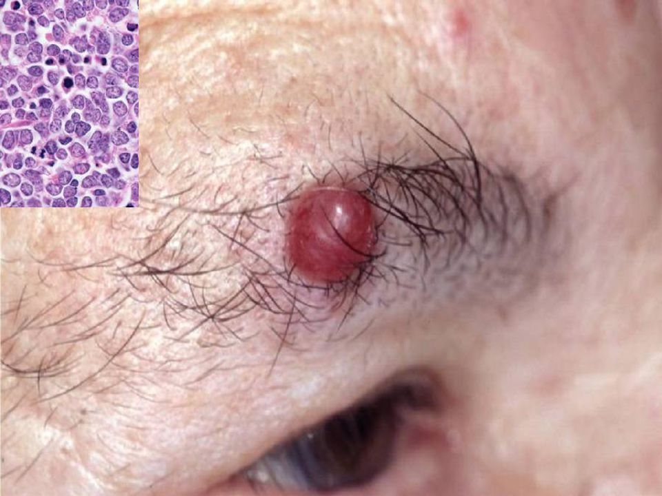 Merkel cell tumor, very highly malignant RARE and usually fatal, looks EXACTLY like a small cell carcinoma of the lung.