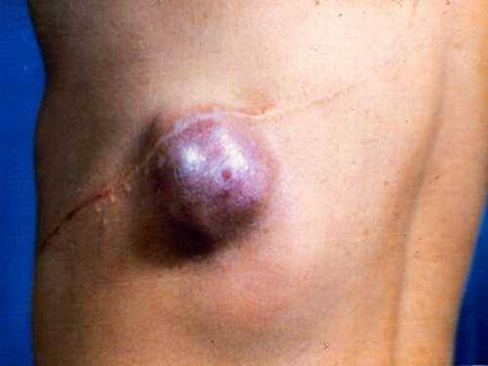 Large fibrous histiocytoma, perhaps a dermatofibrosarcoma protuberans