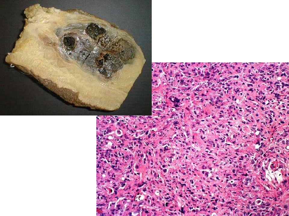 Malignant fibrous histiocytoma.