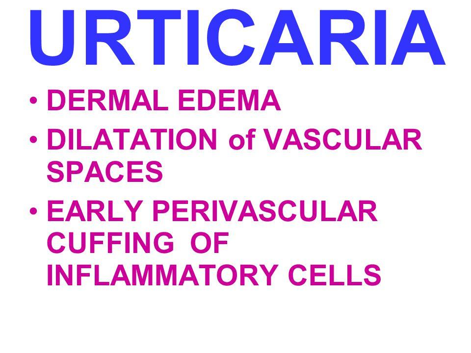 URTICARIA DERMAL EDEMA DILATATION of VASCULAR SPACES