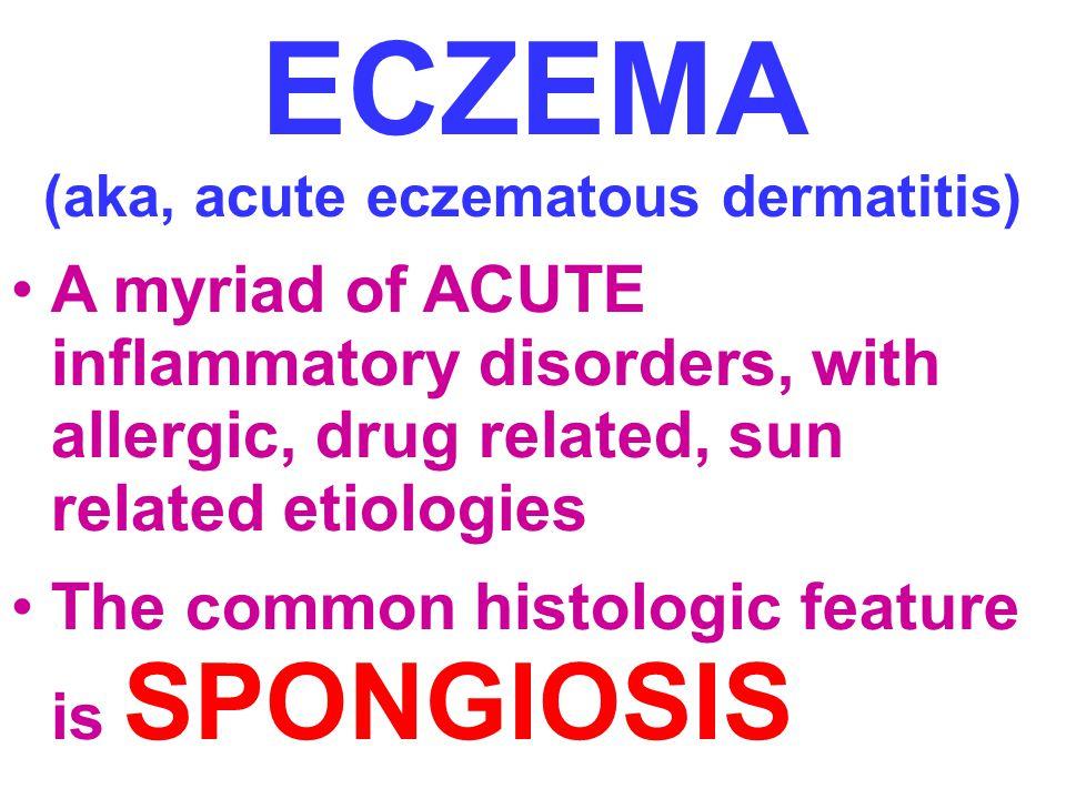 ECZEMA (aka, acute eczematous dermatitis)