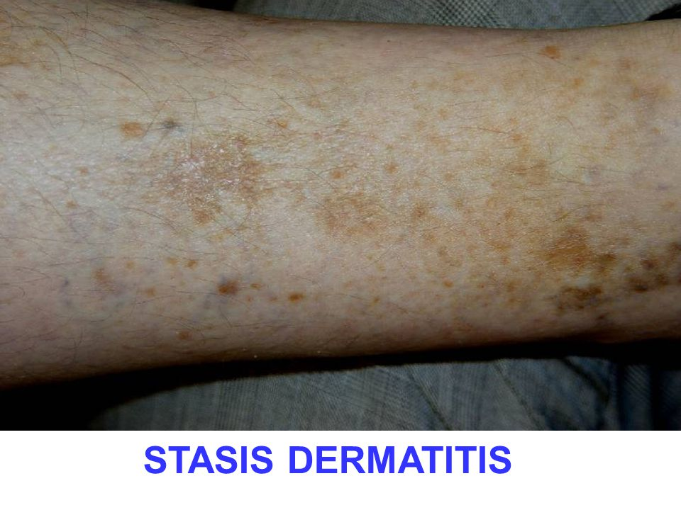 Possibly the commonest skin disease you will see every day, so I'm giving you 5 classic views.
