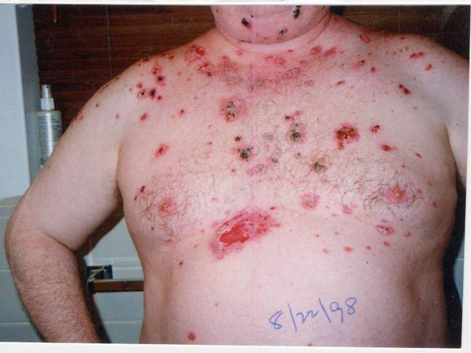 Pemphigus, ruptured, scabbed bullae