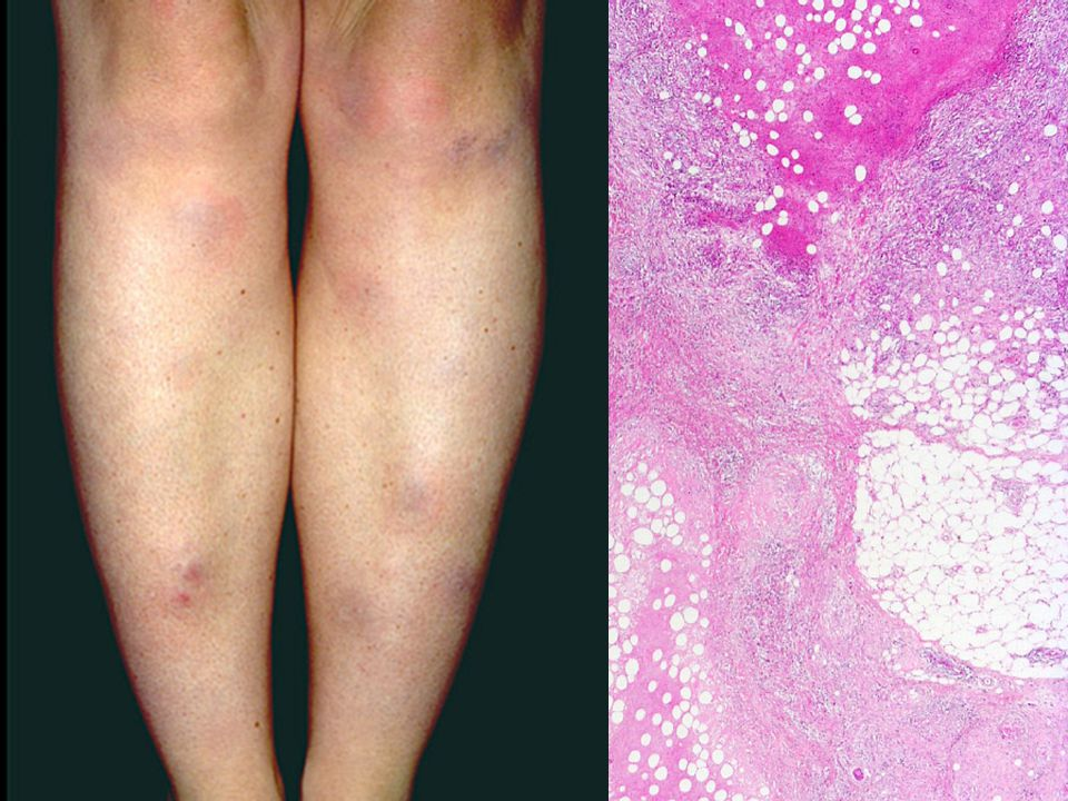 A panniculitis is a primary inflammation of the subdermal connective tissues, i.e., the hypodermis, or subcutis.