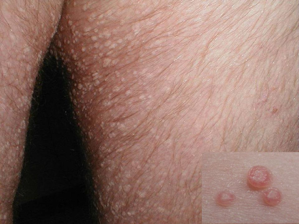 Molluscum contagiosum, a pox virus