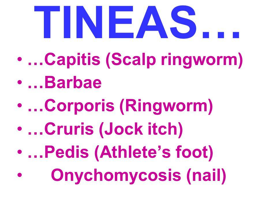 TINEAS… …Capitis (Scalp ringworm) …Barbae …Corporis (Ringworm)