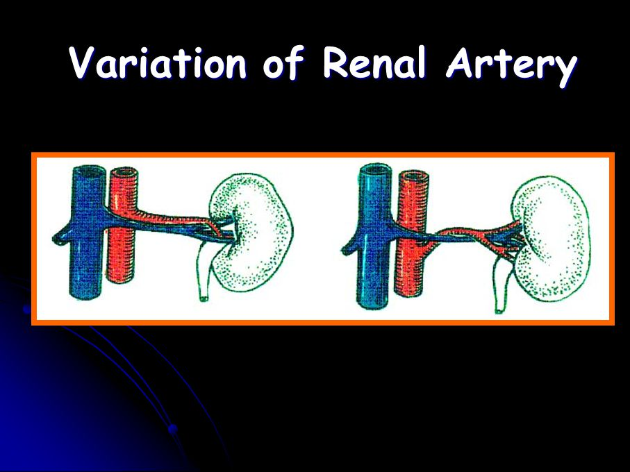 Variation of Renal Artery