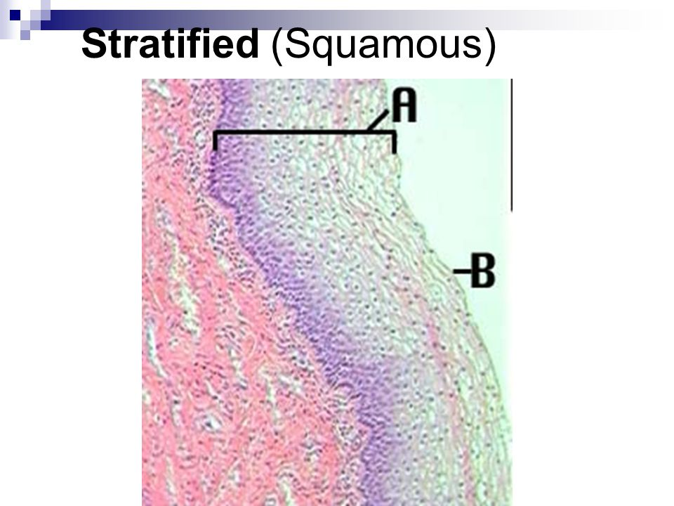 Stratified (Squamous)