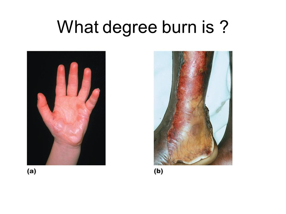 What degree burn is