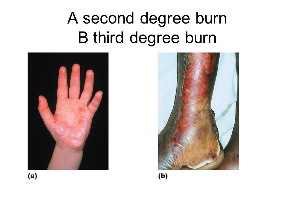 A second degree burn B third degree burn