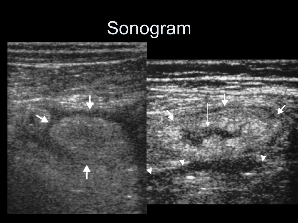 Sonogram Sonographic findings – hyperechoic ovoid lesion, Hypoechoic rim. Hypoechoic center – necrosis.