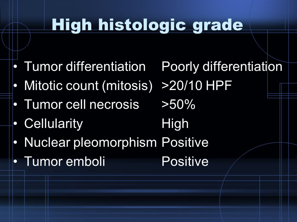 High histologic grade Tumor differentiation Poorly differentiation