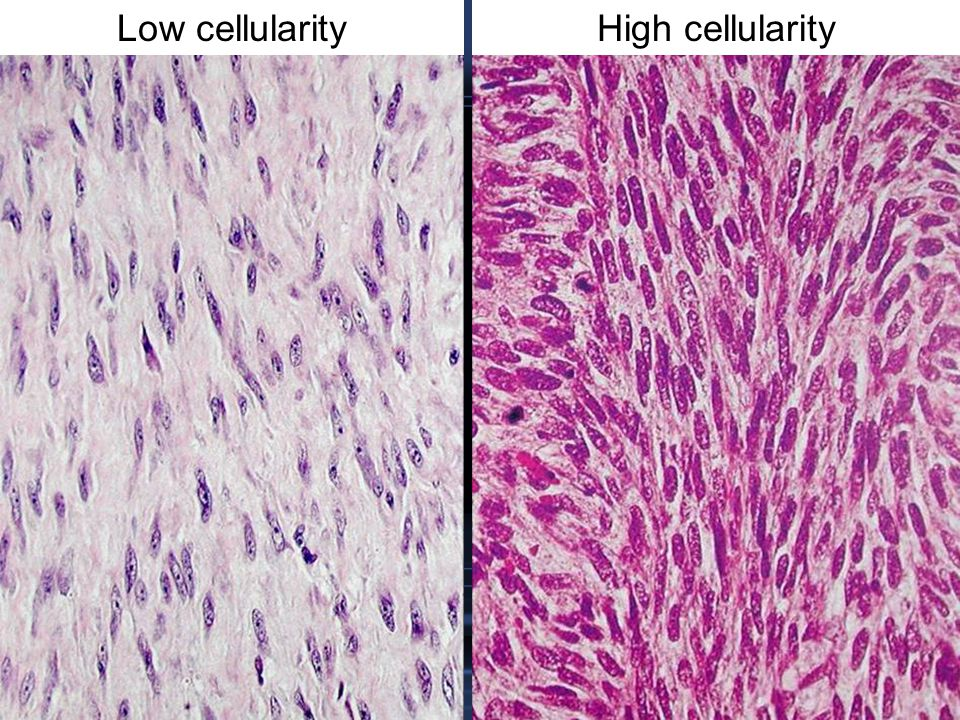 Low cellularity High cellularity