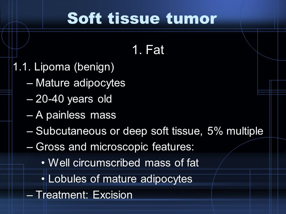 Soft tissue tumor 1. Fat 1.1. Lipoma (benign) Mature adipocytes