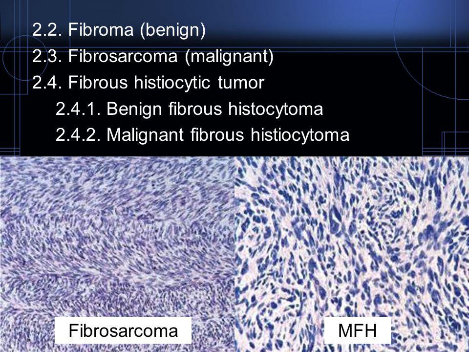 2.2. Fibroma (benign) 2.3. Fibrosarcoma (malignant) 2.4. Fibrous histiocytic tumor. 2.4.1. Benign fibrous histocytoma.