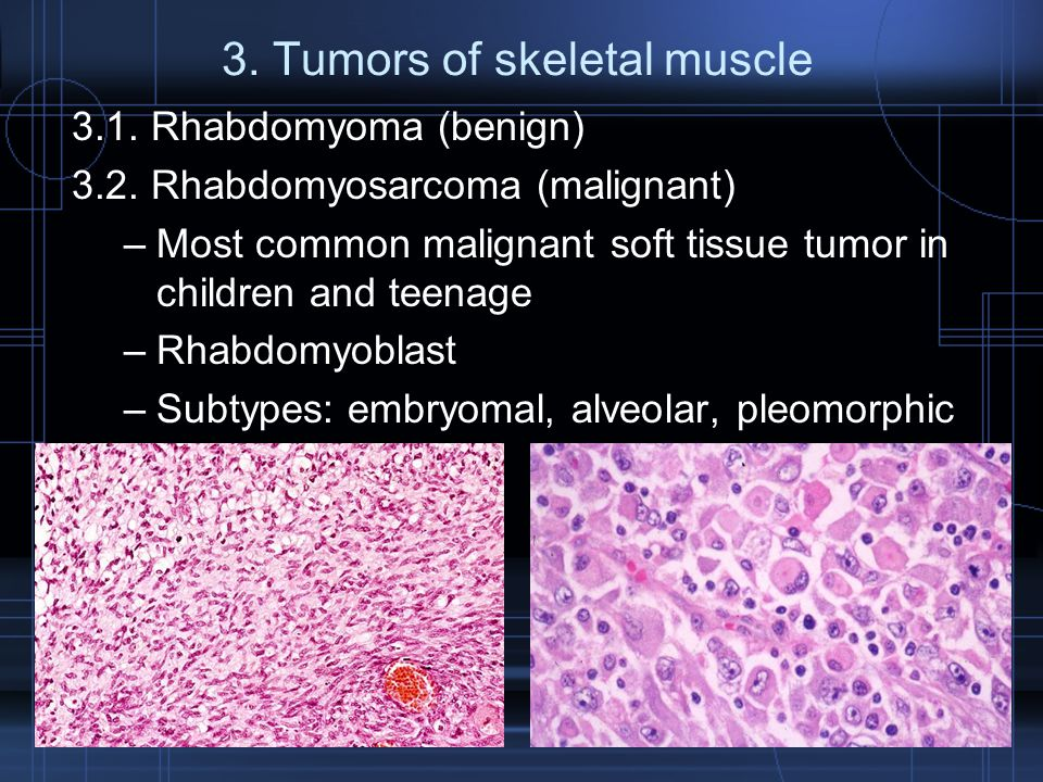 3. Tumors of skeletal muscle