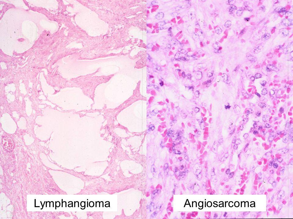 Lymphangioma Angiosarcoma