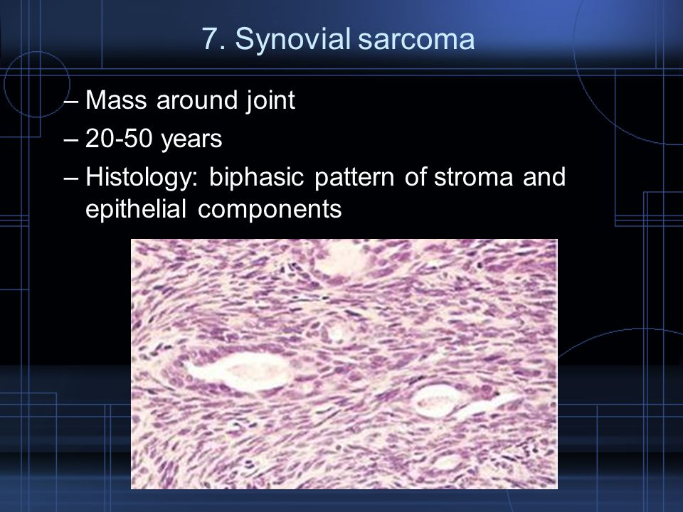 7. Synovial sarcoma Mass around joint 20-50 years