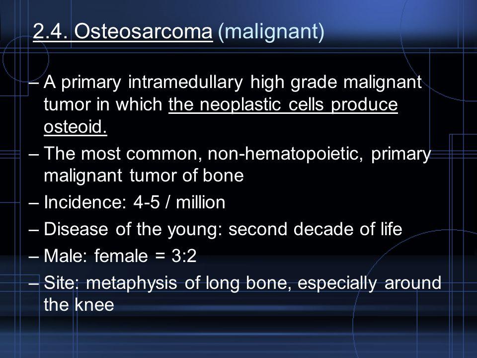 2.4. Osteosarcoma (malignant)