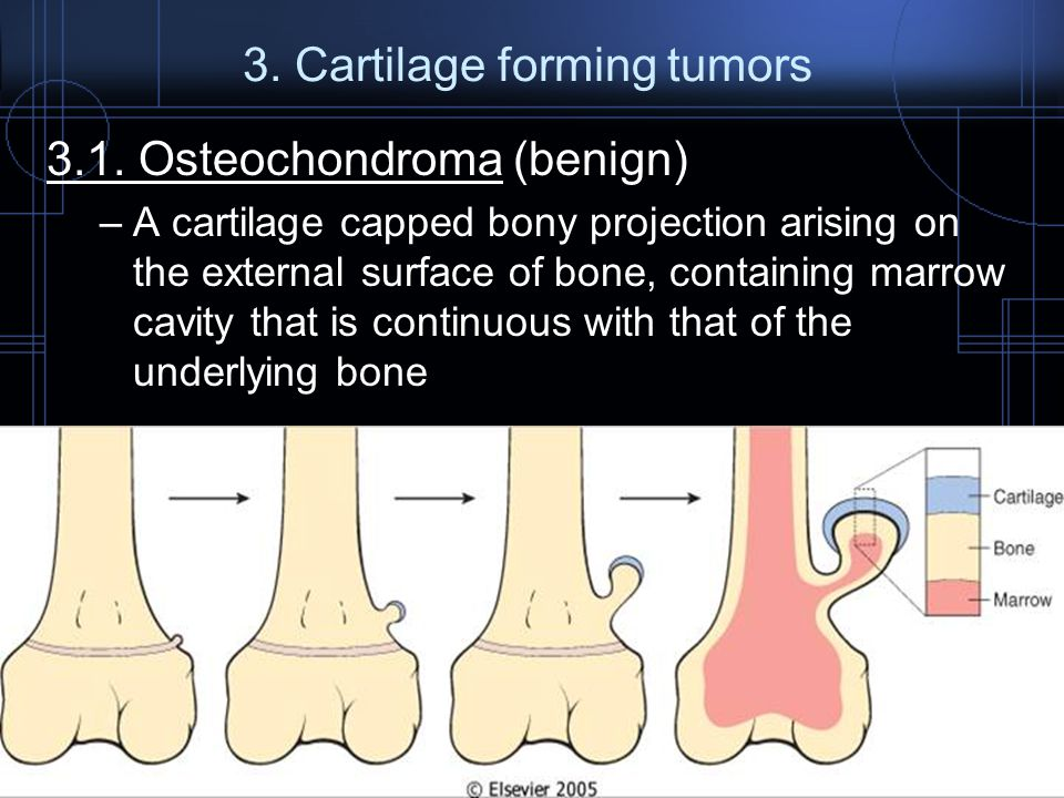 3. Cartilage forming tumors