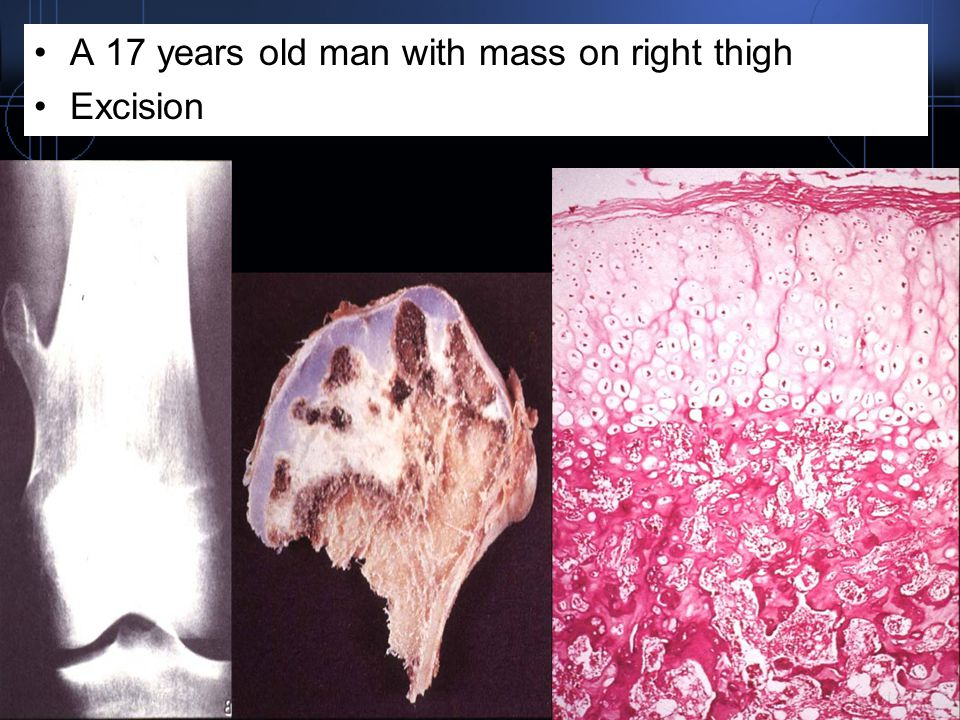 A 17 years old man with mass on right thigh