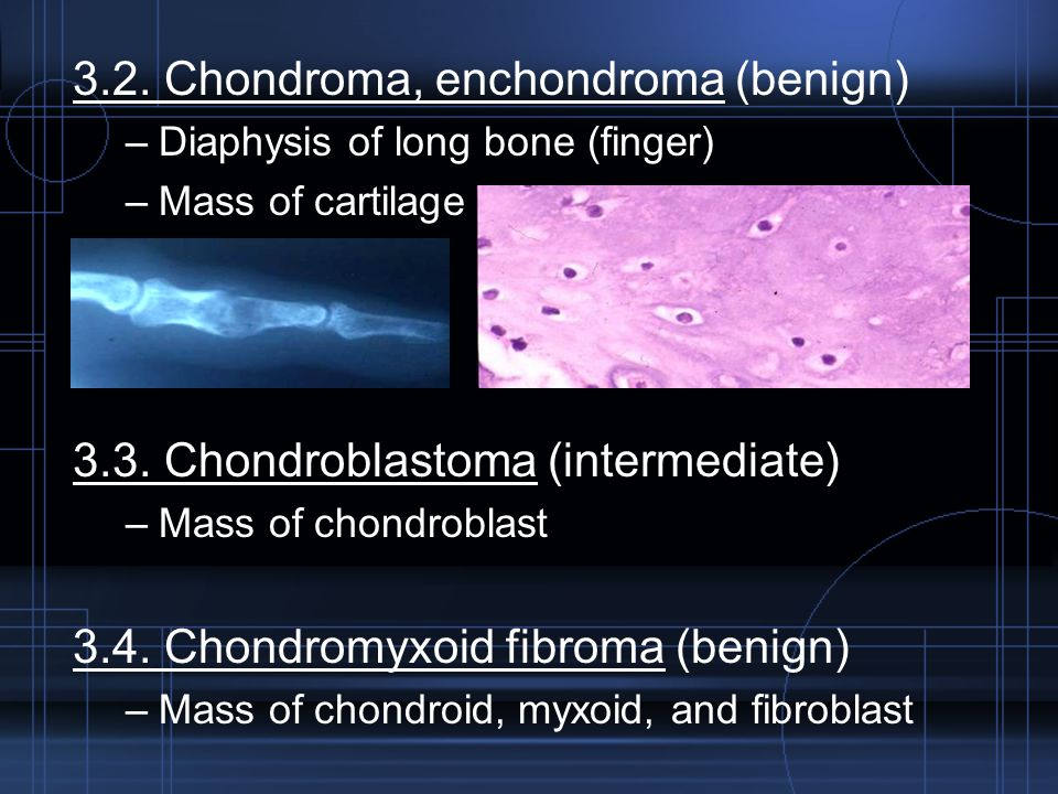 3.2. Chondroma, enchondroma (benign)