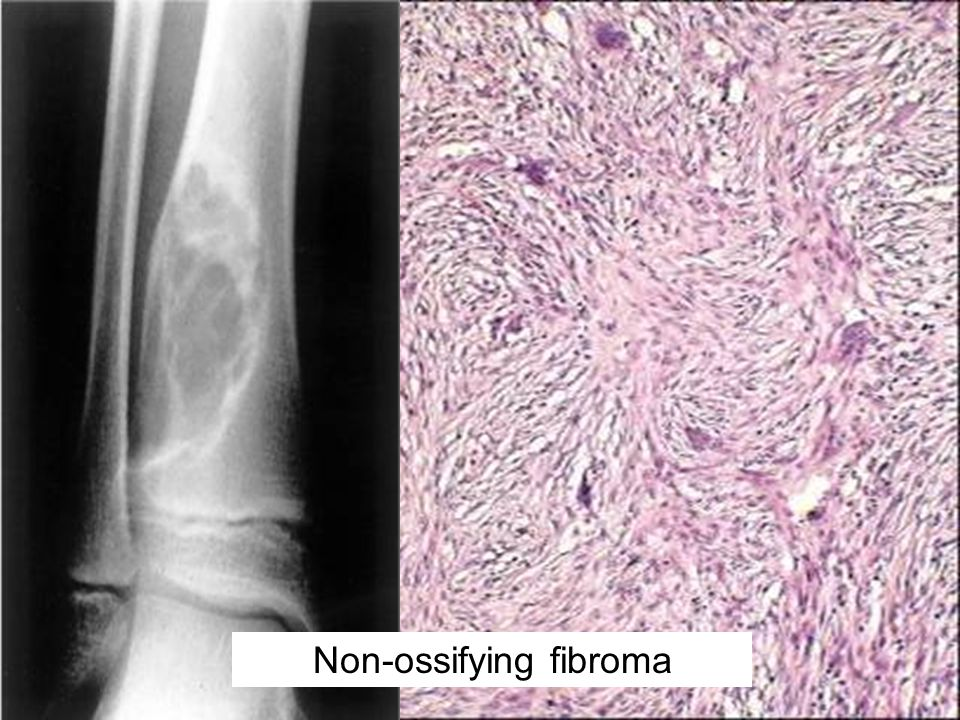 Non-ossifying fibroma