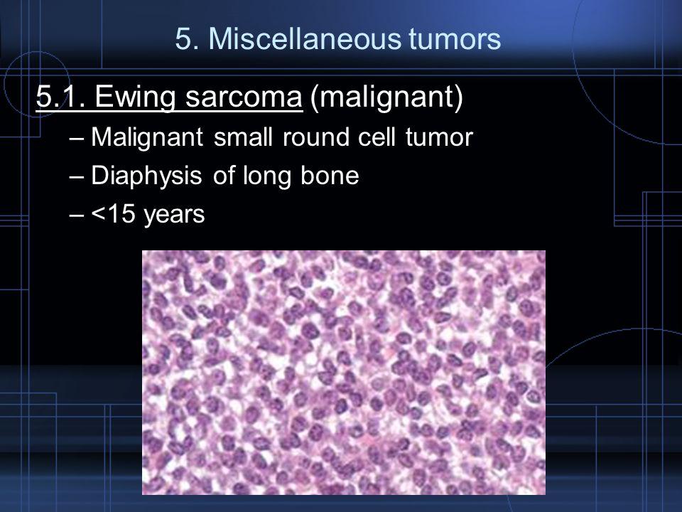 5.1. Ewing sarcoma (malignant)