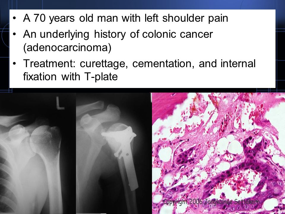A 70 years old man with left shoulder pain