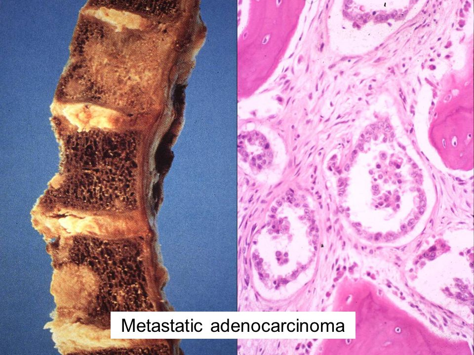Metastatic adenocarcinoma