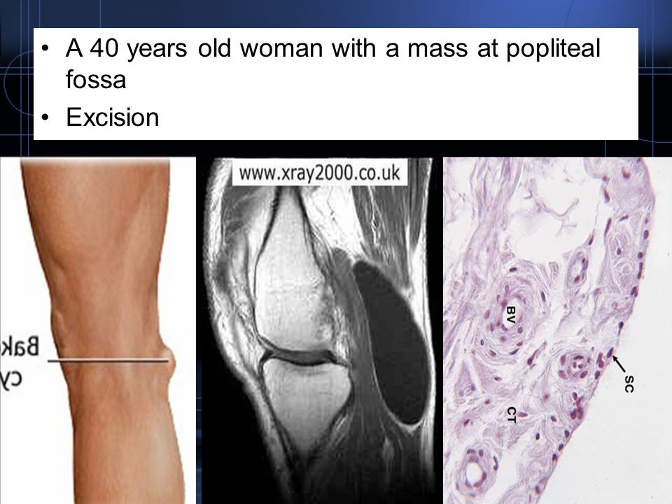 A 40 years old woman with a mass at popliteal fossa
