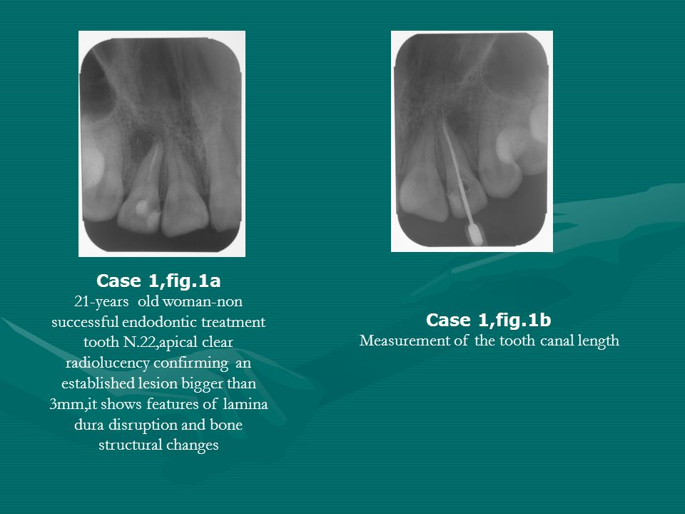 Measurement of the tooth canal length