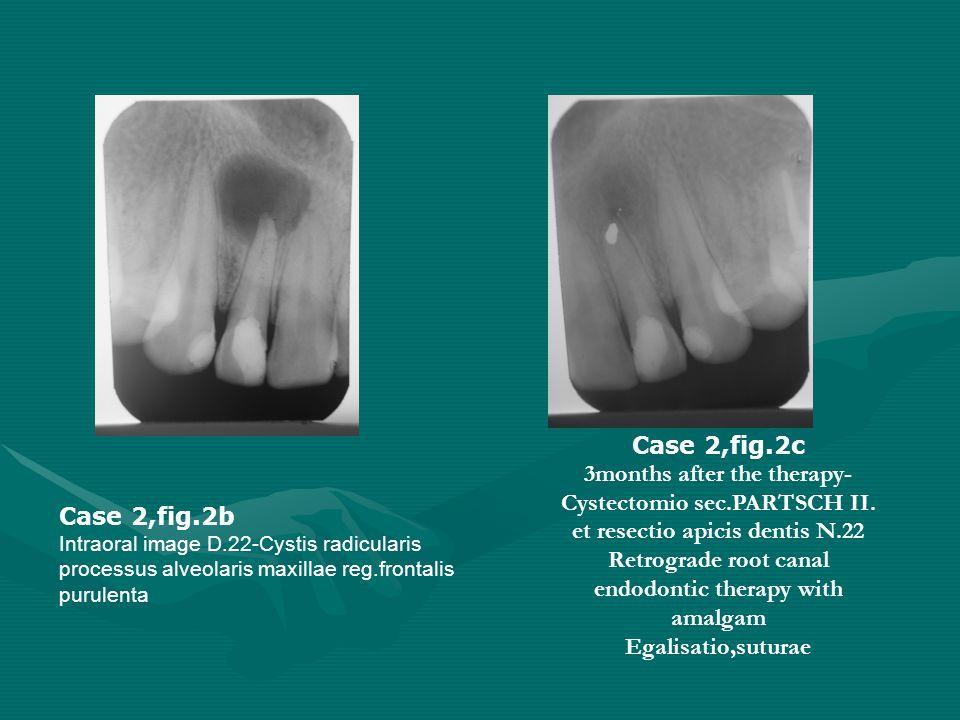 Case 2,fig.2c