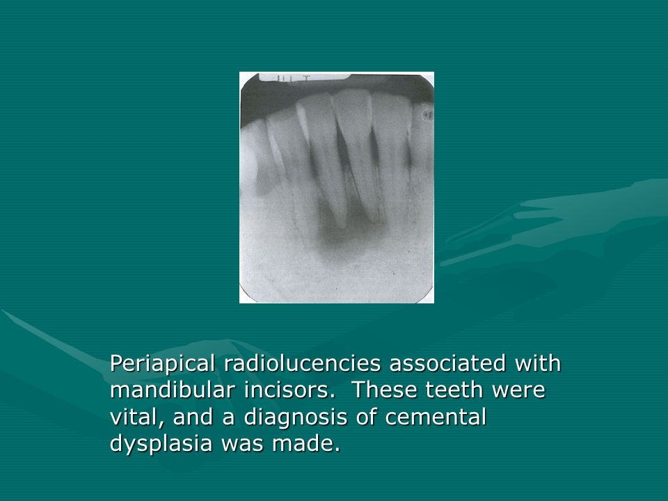 Periapical radiolucencies associated with mandibular incisors