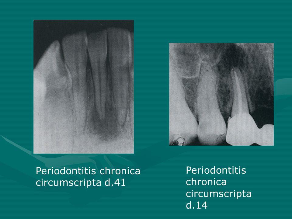 Periodontitis chronica circumscripta d.41