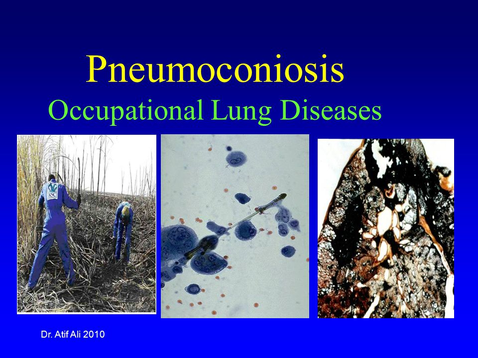 Pneumoconiosis Occupational Lung Diseases