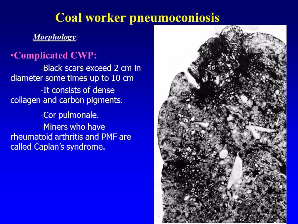 Coal worker pneumoconiosis
