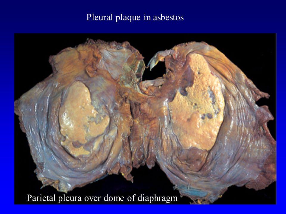 Pleural plaque in asbestos