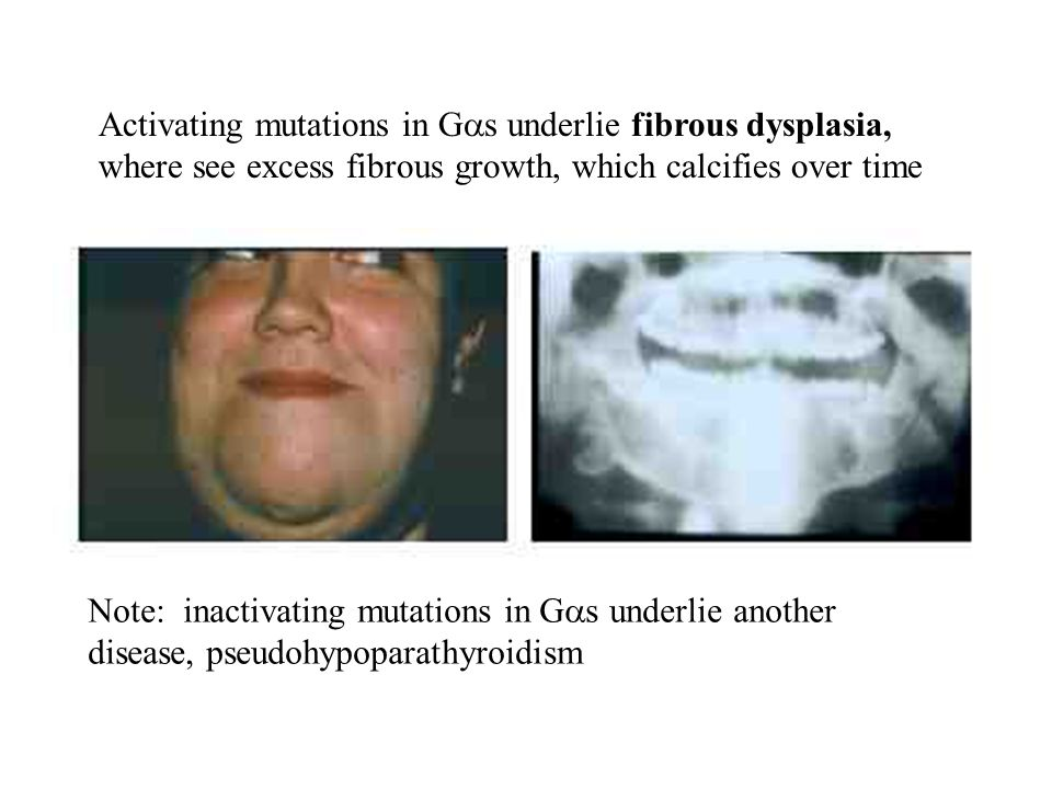 Activating mutations in Gas underlie fibrous dysplasia, where see excess fibrous growth, which calcifies over time
