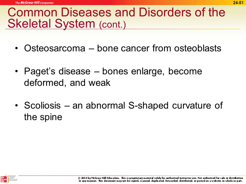 Common Diseases and Disorders of the Skeletal System (cont.)