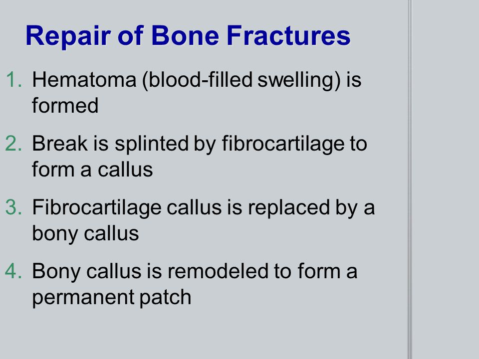 Repair of Bone Fractures