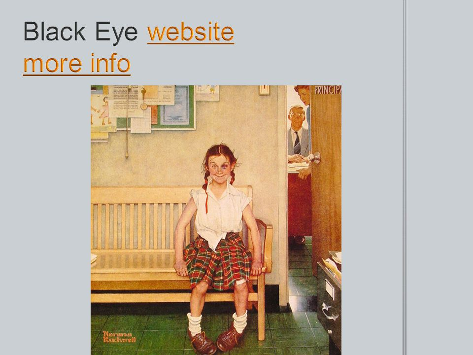 Black Eye website more info