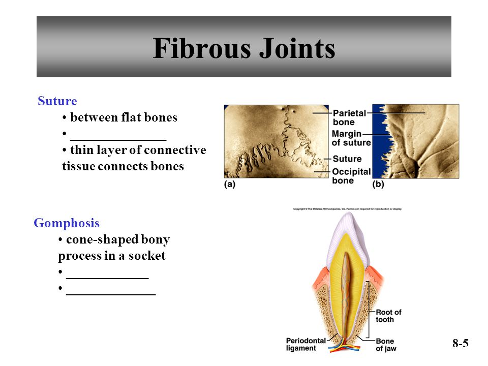 Fibrous Joints Suture between flat bones ______________