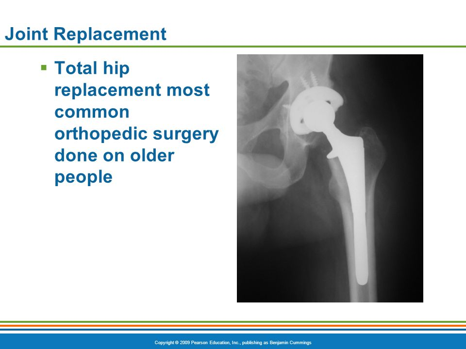 Joint Replacement Total hip replacement most common orthopedic surgery done on older people