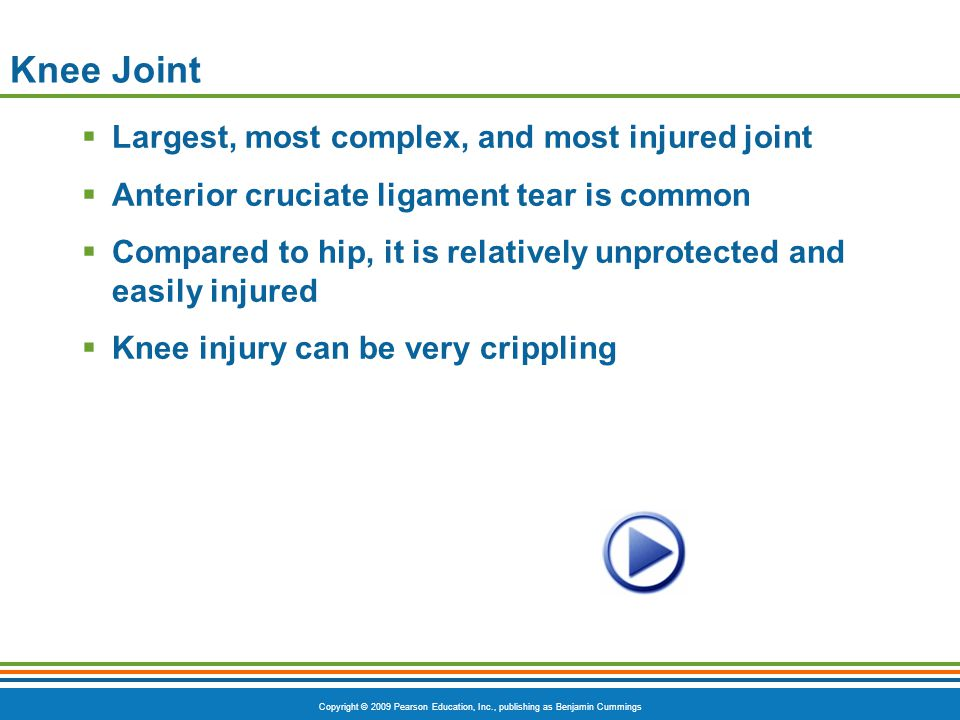 Knee Joint Largest, most complex, and most injured joint